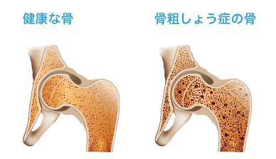 骨粗しょう症 治療